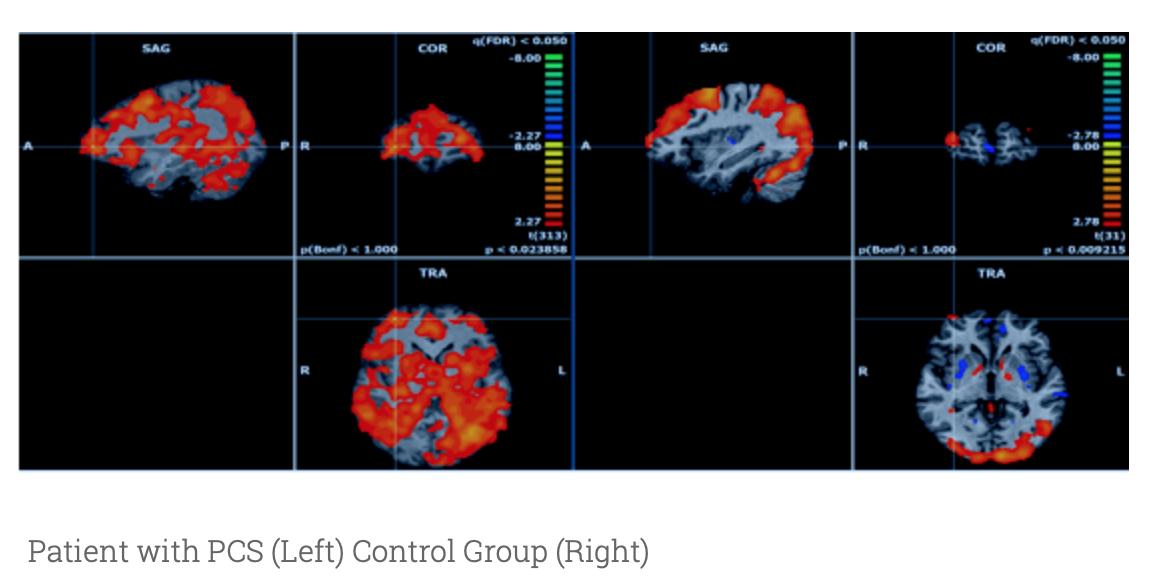 Functional MRIs « BIST